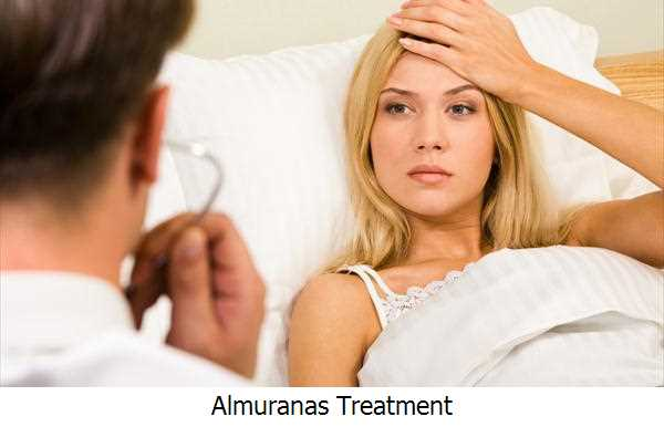Almuranas Treatment