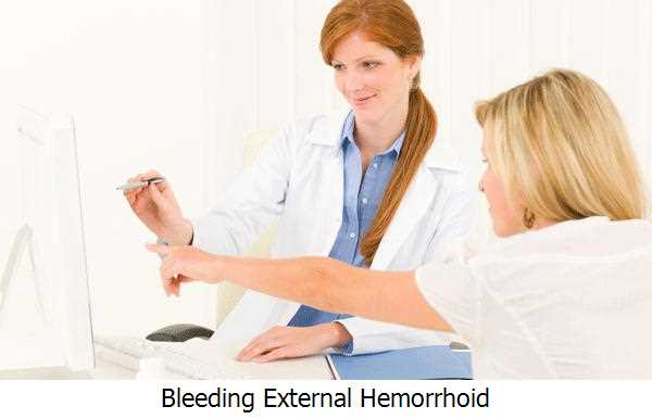 Bleeding External Hemorrhoid