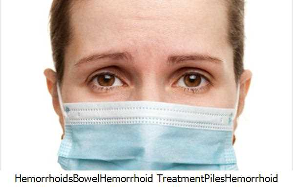 Hemorrhoids,Bowel,Hemorrhoid Treatment,Piles,Hemorrhoid