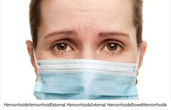 Hemorrhoids,Hemorrhoid,External Hemorrhoids,Internal Hemorrhoids,Bowel,Hemorrhoids Treatments,Hemorrhoid Treatment