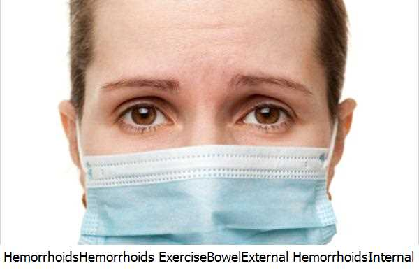Hemorrhoids,Hemorrhoids Exercise,Bowel,External Hemorrhoids,Internal Hemorrhoids