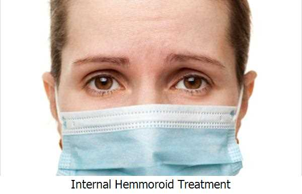 Internal Hemmoroid Treatment
