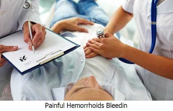Painful Hemorrhoids Bleedin